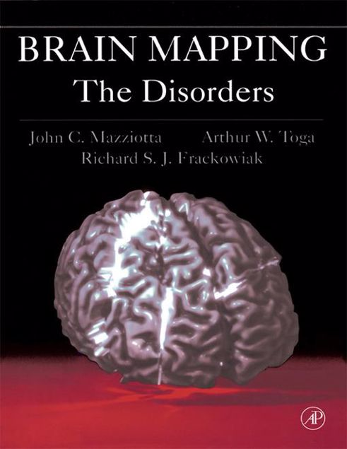 Picture of Brain Mapping: The Disorders: The Disorders