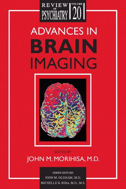 Picture of Advances in Brain Imaging