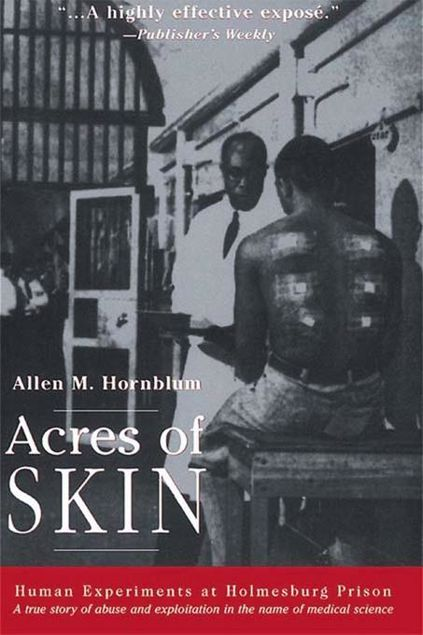Picture of Acres of Skin: Human Experiments at Holmesburg Prison